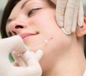 ترد لیفت پوست صورت با نخ ليفتينگ قابل جذب کاگ با جنس pdo (پلي دي اکسانون) و نخ اسکرو، جديدترين روش غير تهاجمي مورد استفاده در درمان کشيدن پوست و ايجاد فرم وي (V) شکل به صورت مي باشد.