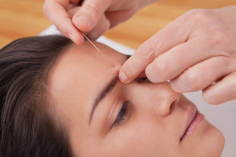 انجام طب سوزنی که شامل قرار داده سوزنهای نازک ضد چروک پوست صورت و چشم و گردن است
