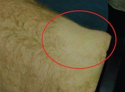 تست پوستی واکنش پوست در لیزر درمانی را مشخص می کند
