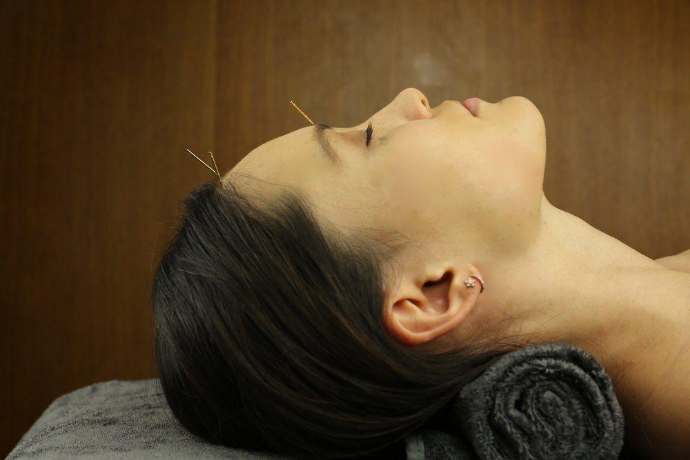 اثرات ماندگار طب سوزنی زیبایی برای درمان افتادگی پوست صورت