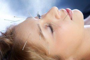 طب سوزنی لیفتینگ با چندین روش مختلف میتواند بهعنوان درمان جایگزین لیفتینگ عمل