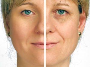 طب سوزنی باعث شادابی و جوانی پوست با ظاهری طبیعی می شود
