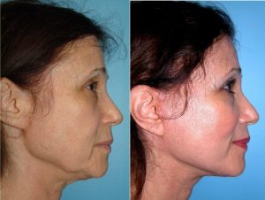 استفاده از نخ جذب شونده برای لیفت صورت