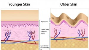نخهای مورد استفاده قابل جذب بوده و پوست را جهت تولید کلاژن و کمک به افزایش حجم آن به صورت طبیعی و تدریجی، تحریک میکند.